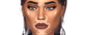 Die Sims 4: Hautkrankheit wird zum Schönheitstrend