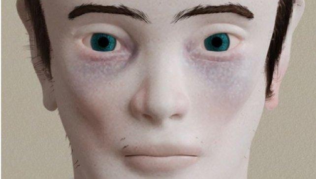 Eine Studie zeigt, wie sich 20 Jahre Videospielsucht auf den menschlichen Körper auswirken können.