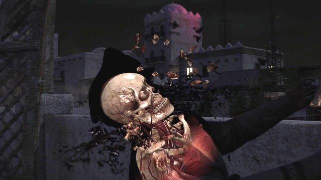 Wer es nicht so deftig mag, kann die Szenen mit der Röntgenkamera auch komplett ausschalten.