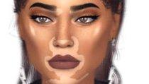 <span></span> Die Sims 4: Hautkrankheit wird zum Schönheitstrend