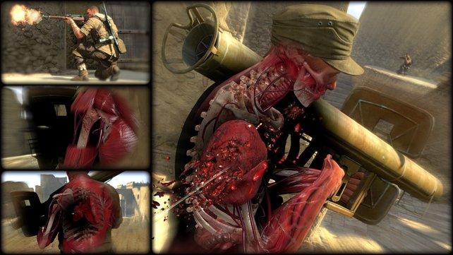 Heftig: Die Röntgenkamera zeigt den Tötungsakt schonungslos.