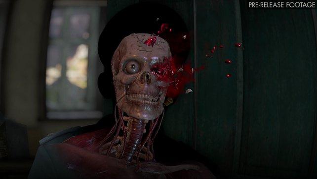 Autsch! Mit euren Treffern zerschmettert ihr Knochen und lebenswichtige Organe.